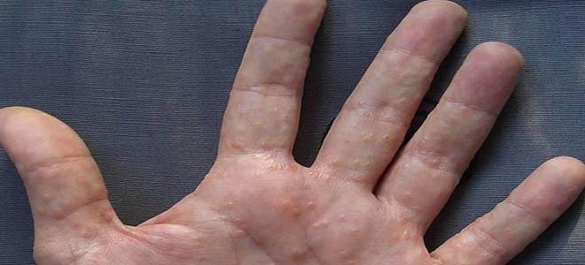 La dermatitis alérgico neyrodermit su tratamiento